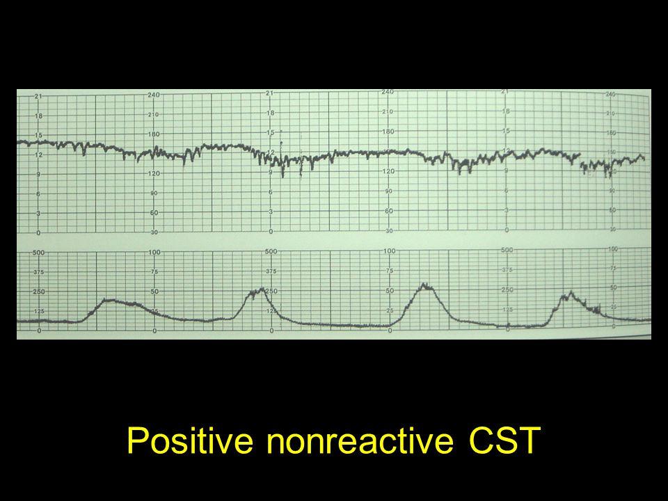 Positive nonreactive CST