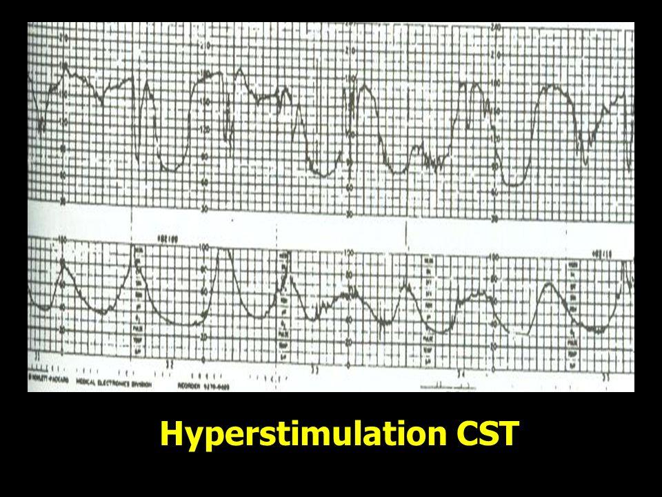 Hyperstimulation CST