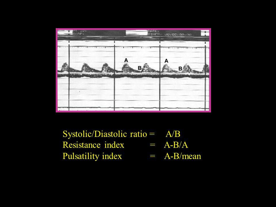 Systolic/Diastolic ratio = A/B Resistance index = A-B/A