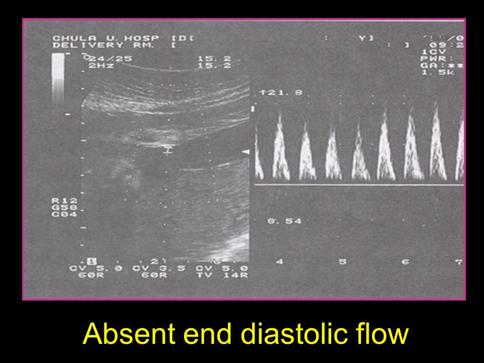 Absent end diastolic flow