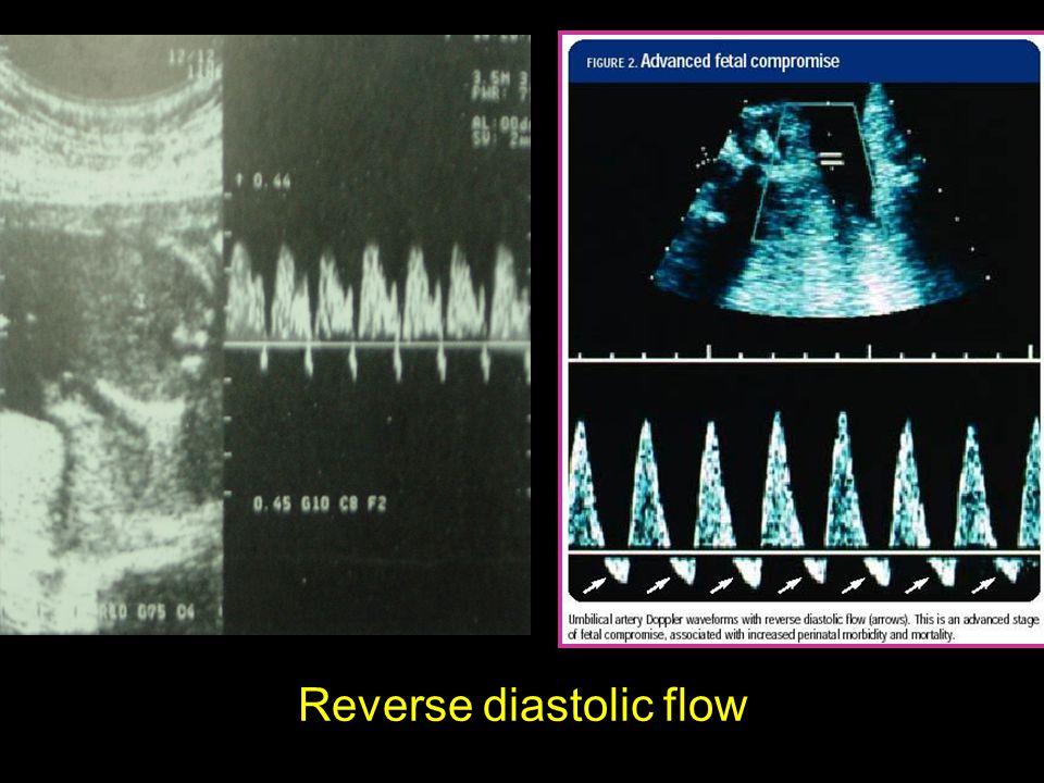 Reverse diastolic flow