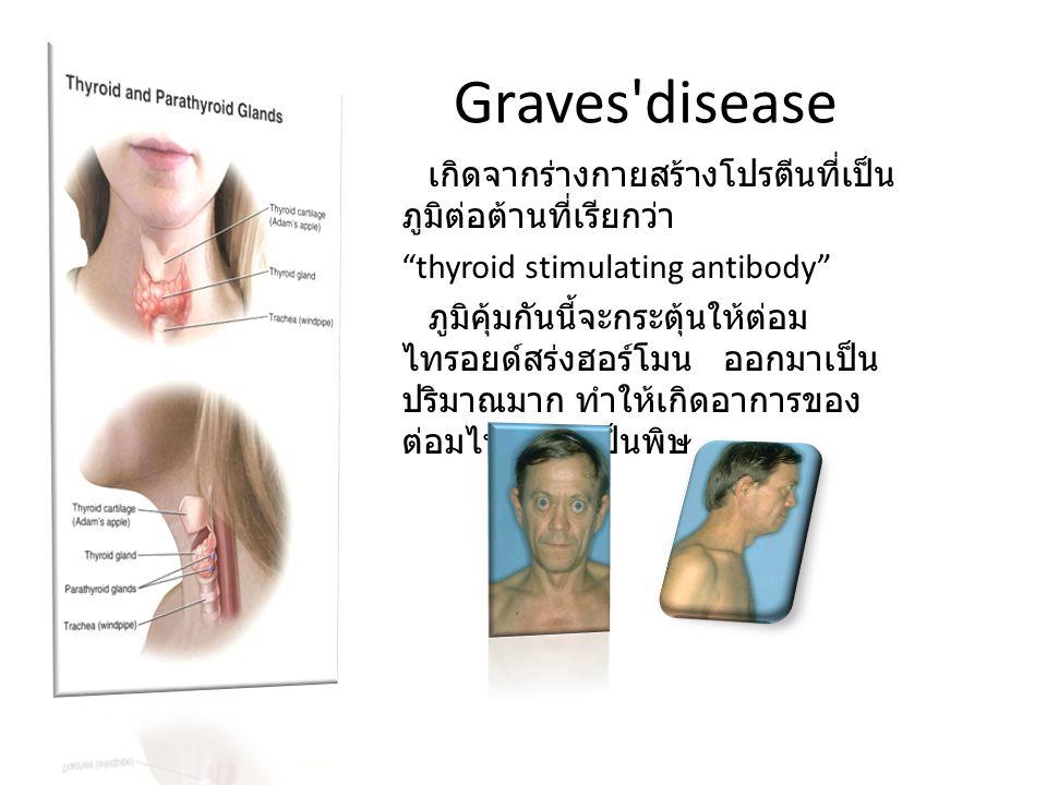 Graves disease เกิดจากร่างกายสร้างโปรตีนที่เป็นภูมิต่อต้านที่เรียกว่า