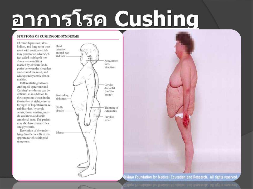 อาการโรค Cushing syndrome