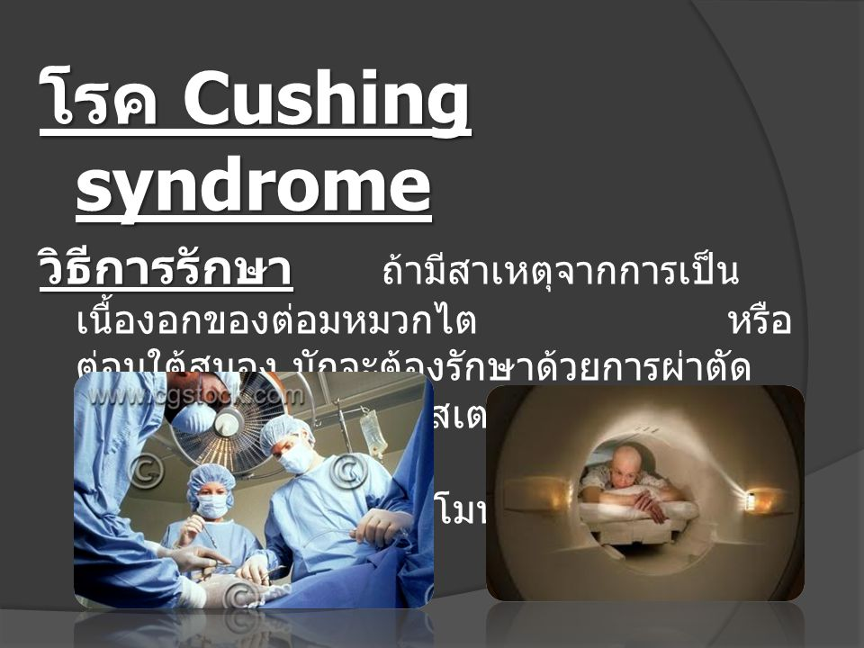 โรค Cushing syndrome