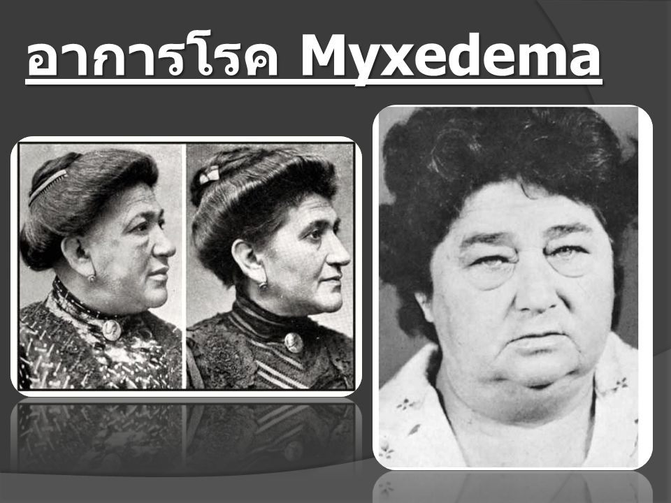 อาการโรค Myxedema