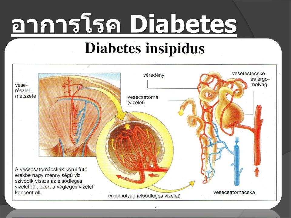 อาการโรค Diabetes insipidus (เบาจืด)