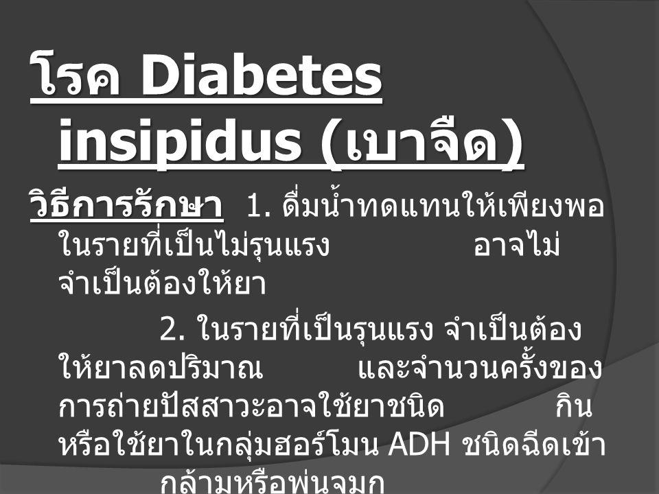 โรค Diabetes insipidus (เบาจืด)