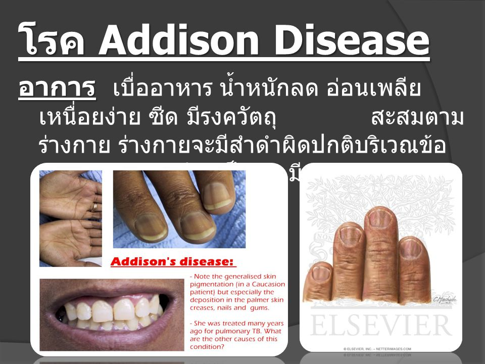 โรค Addison Disease