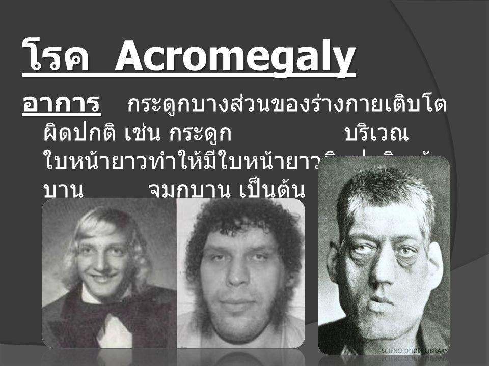 โรค Acromegaly