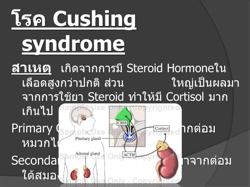 โรค Cushing syndrome สาเหตุ เกิดจากการมี Steroid Hormoneในเลือดสูงกว่าปกติ ส่วน ใหญ่เป็นผลมาจากการใช้ยา Steroid ทำให้มี Cortisol มากเกินไป.
