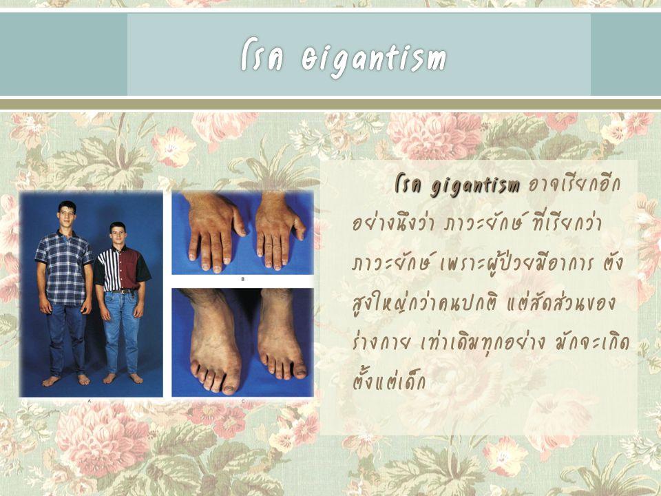 โรค Gigantism