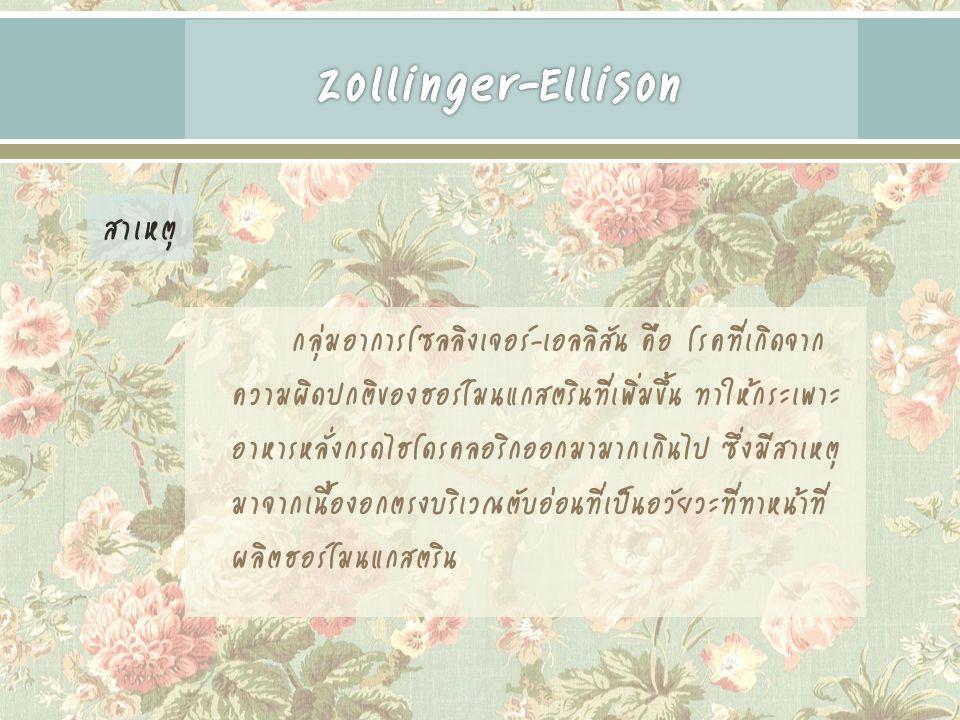 Zollinger-Ellison สาเหตุ