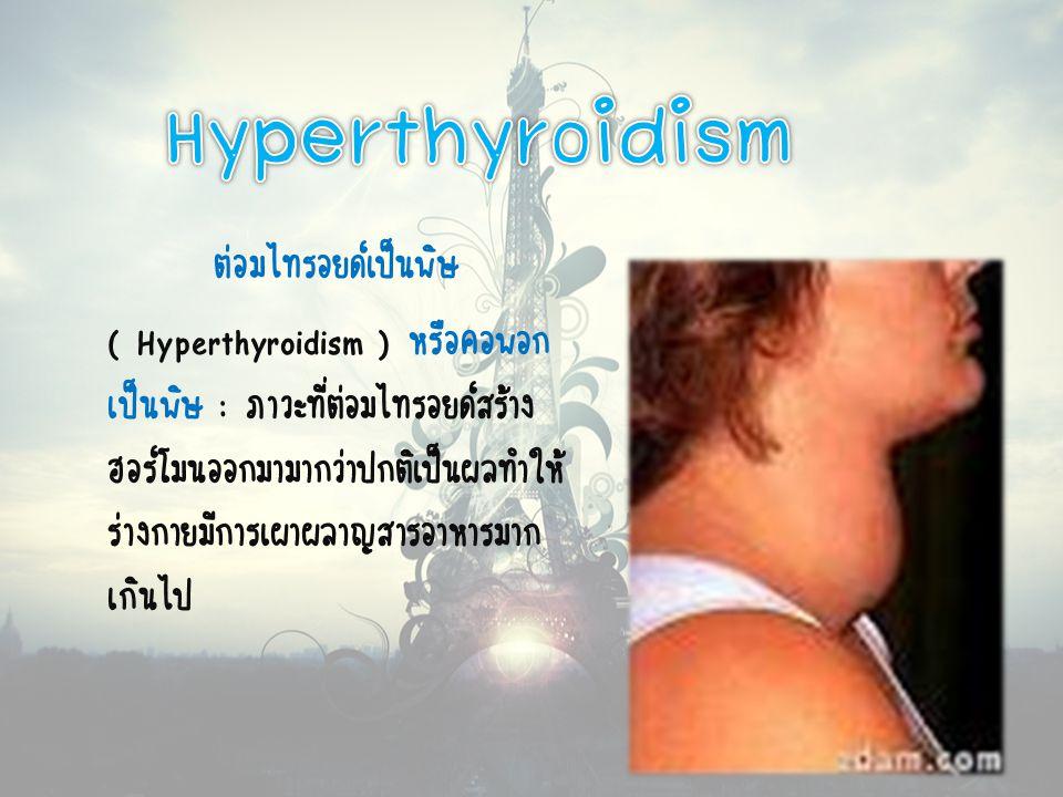 Hyperthyroidism ต่อมไทรอยด์เป็นพิษ