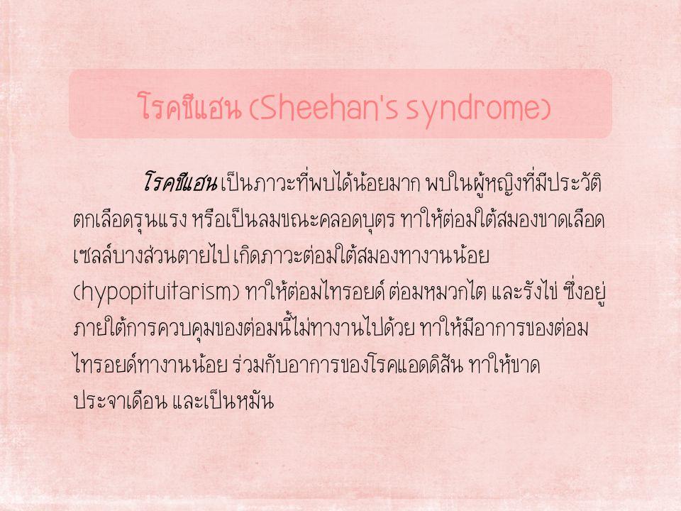 โรคชีแฮน (Sheehan s syndrome)