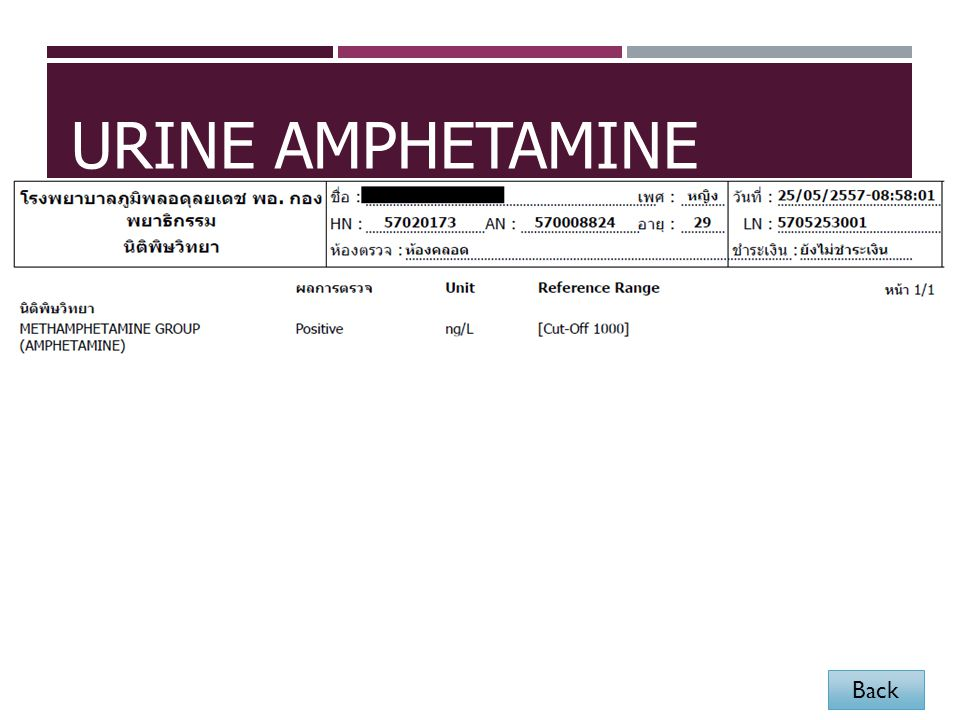 Urine Amphetamine Back