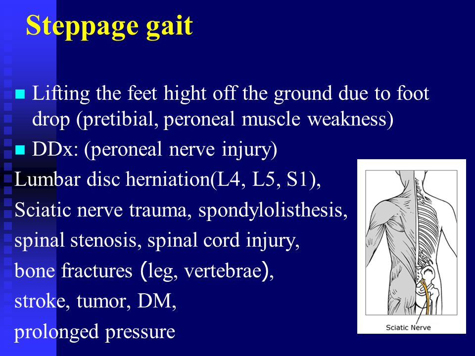 Steppage gait Lifting the feet hight off the ground due to foot drop (pretibial, peroneal muscle weakness)