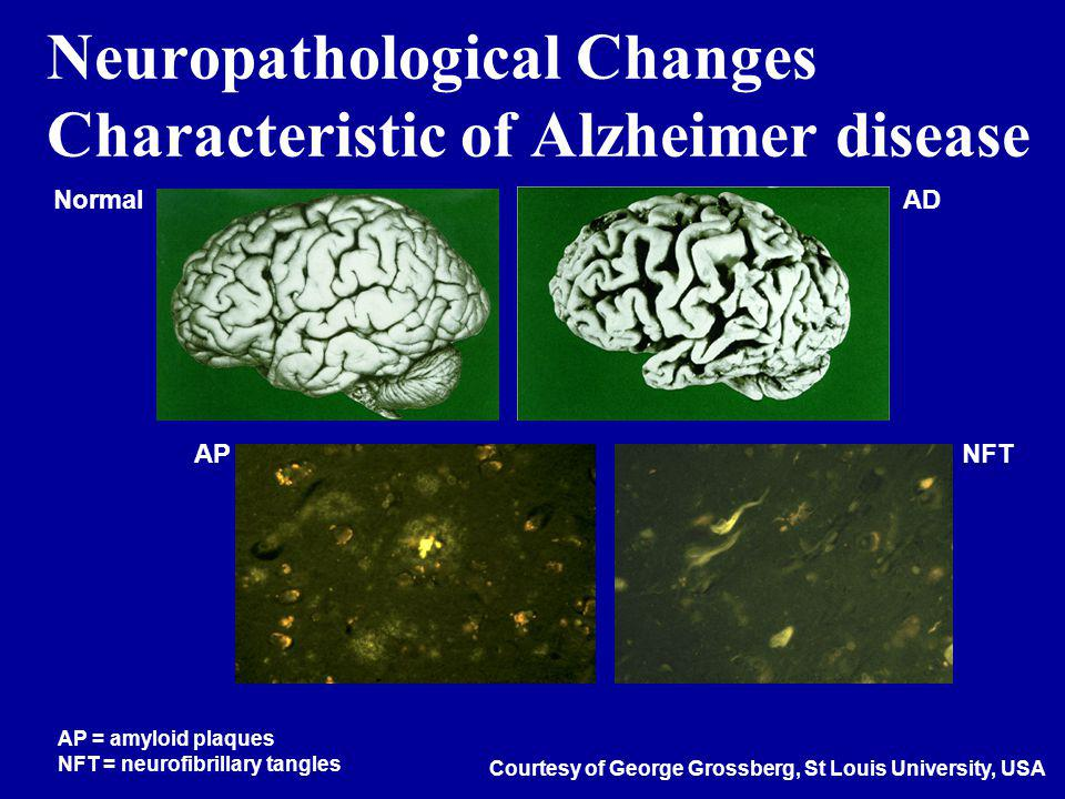 Neuropathological Changes Characteristic of Alzheimer disease