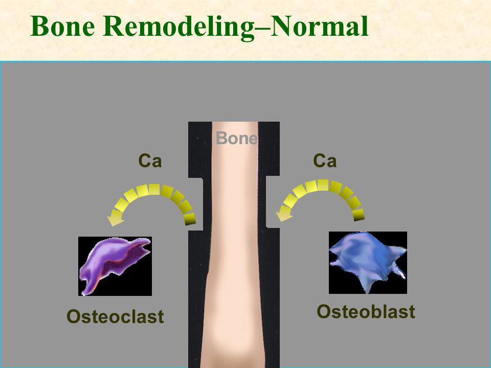 Bone Remodeling–Normal