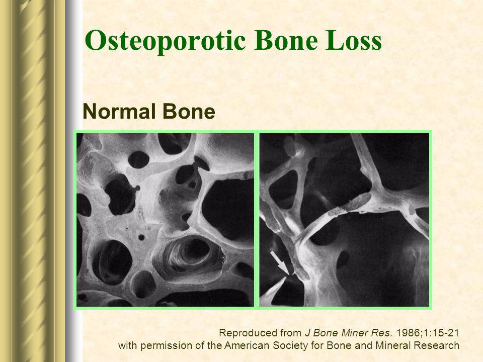 Osteoporotic Bone Loss