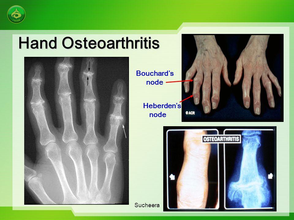Hand Osteoarthritis Bouchard's node Heberden's node Sucheera