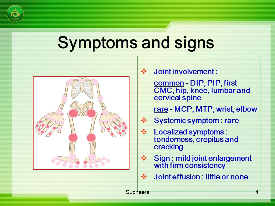 Symptoms and signs Joint involvement :