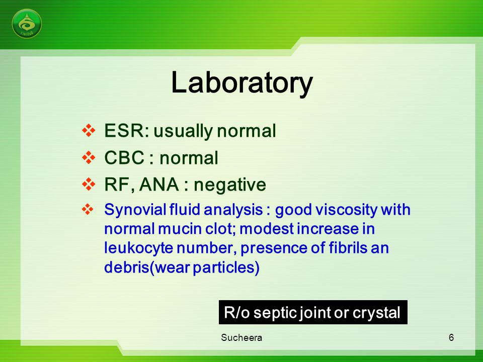 Laboratory ESR: usually normal CBC : normal RF, ANA : negative