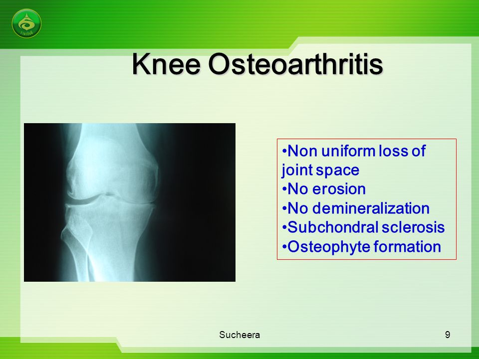Knee Osteoarthritis Non uniform loss of joint space No erosion