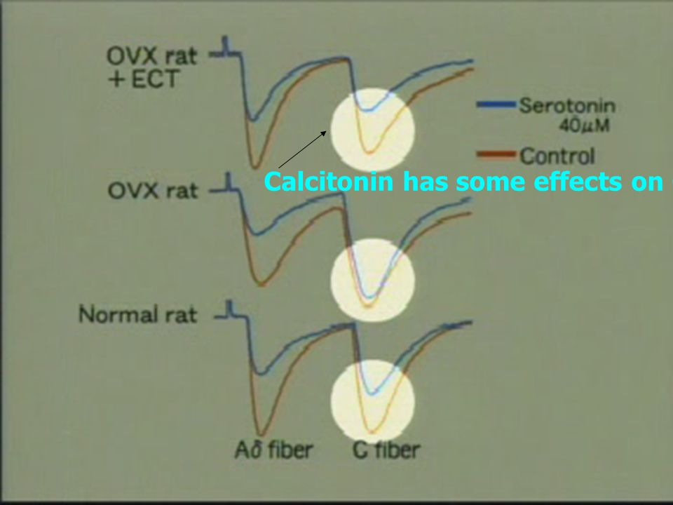 Calcitonin has some effects on C-fiber