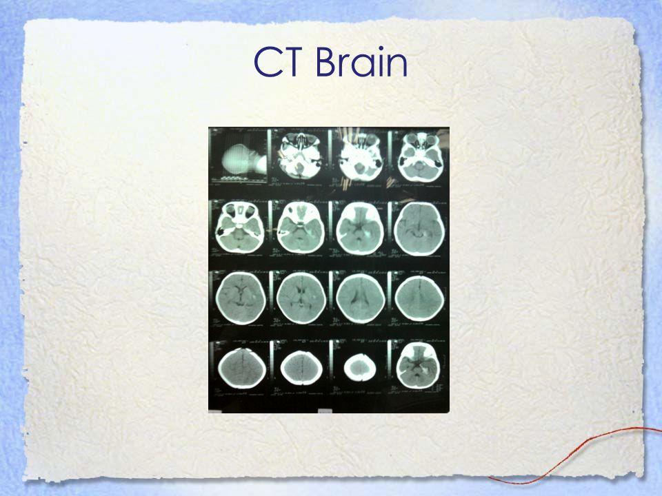 CT Brain