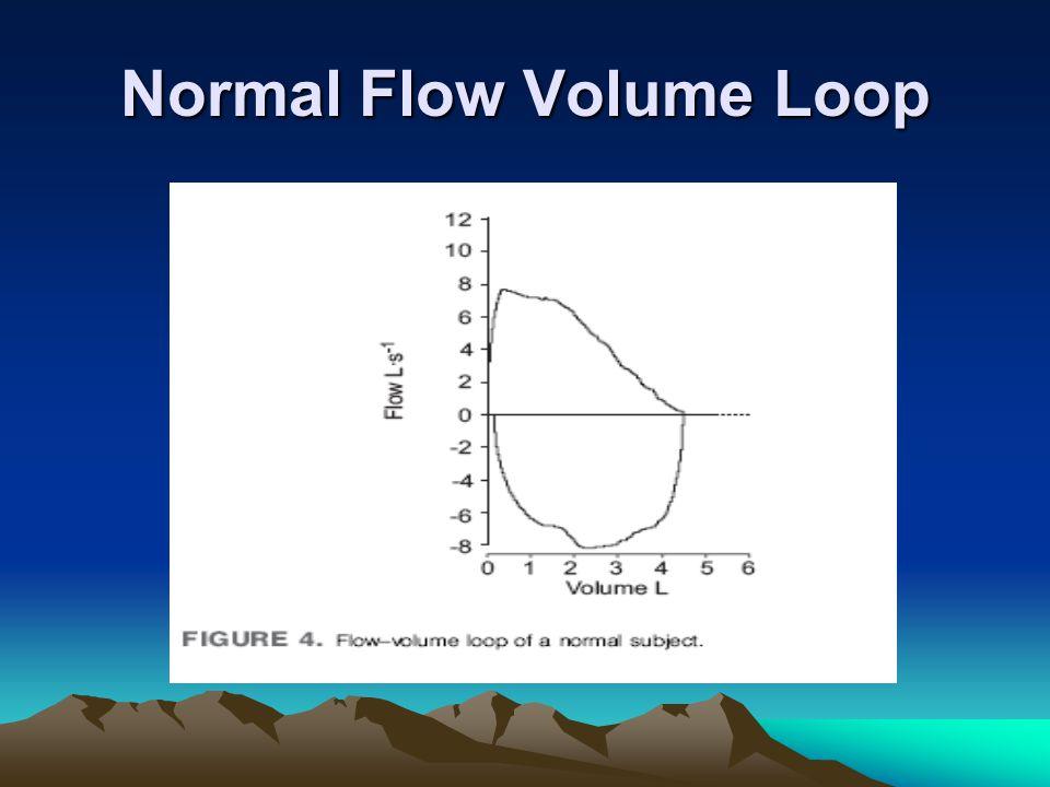 Normal Flow Volume Loop