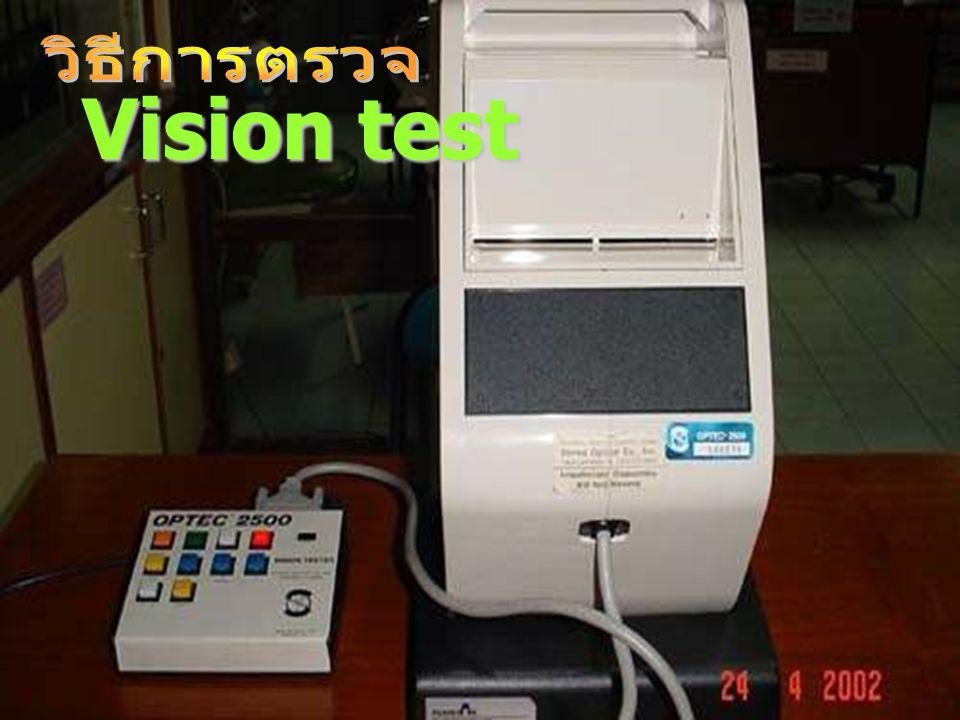 วิธีการตรวจ Vision test