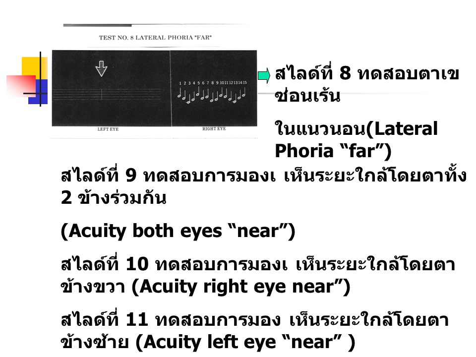 สไลด์ที่ 8 ทดสอบตาเขซ่อนเร้น