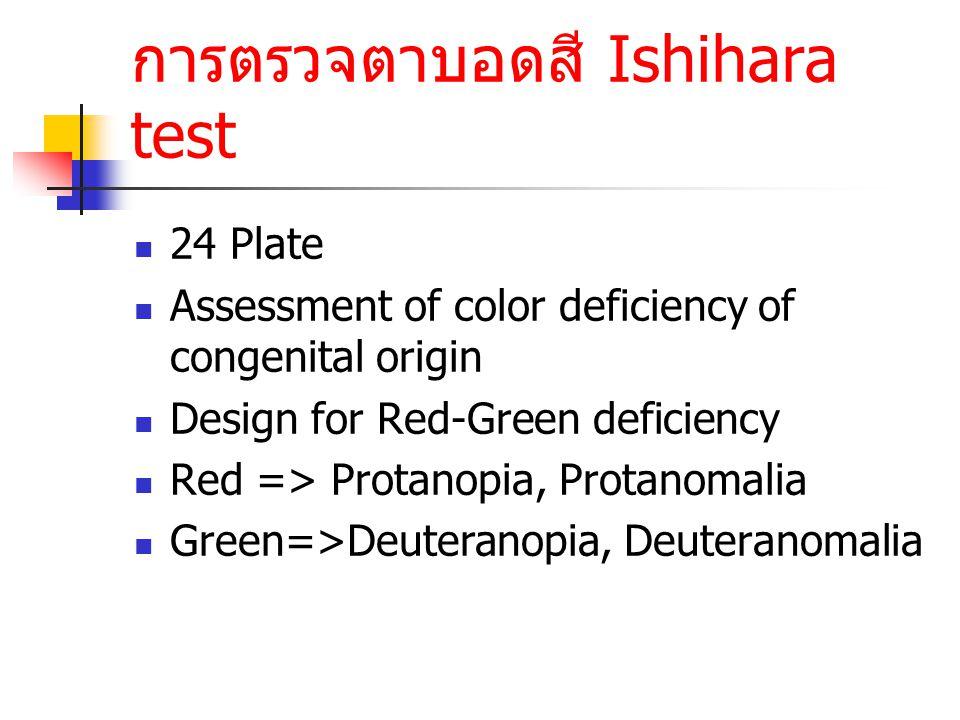 การตรวจตาบอดสี Ishihara test