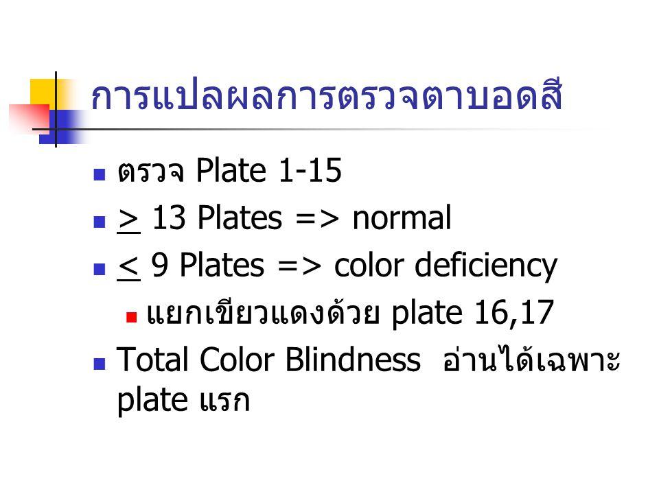 การแปลผลการตรวจตาบอดสี