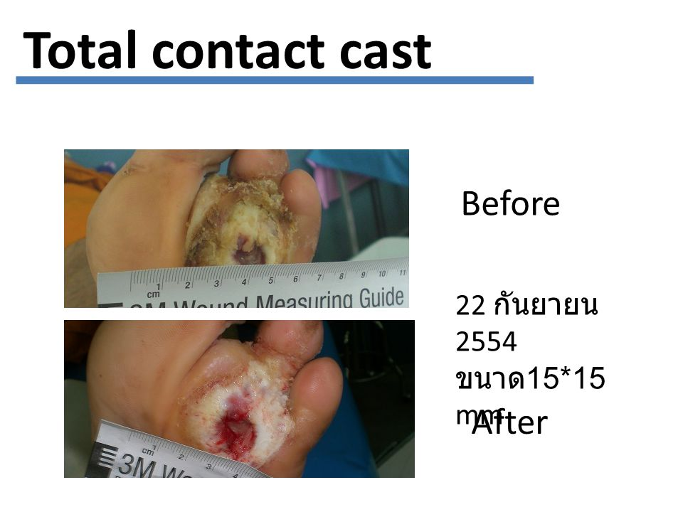 Total contact cast Before 22 กันยายน 2554 ขนาด15*15 mm After