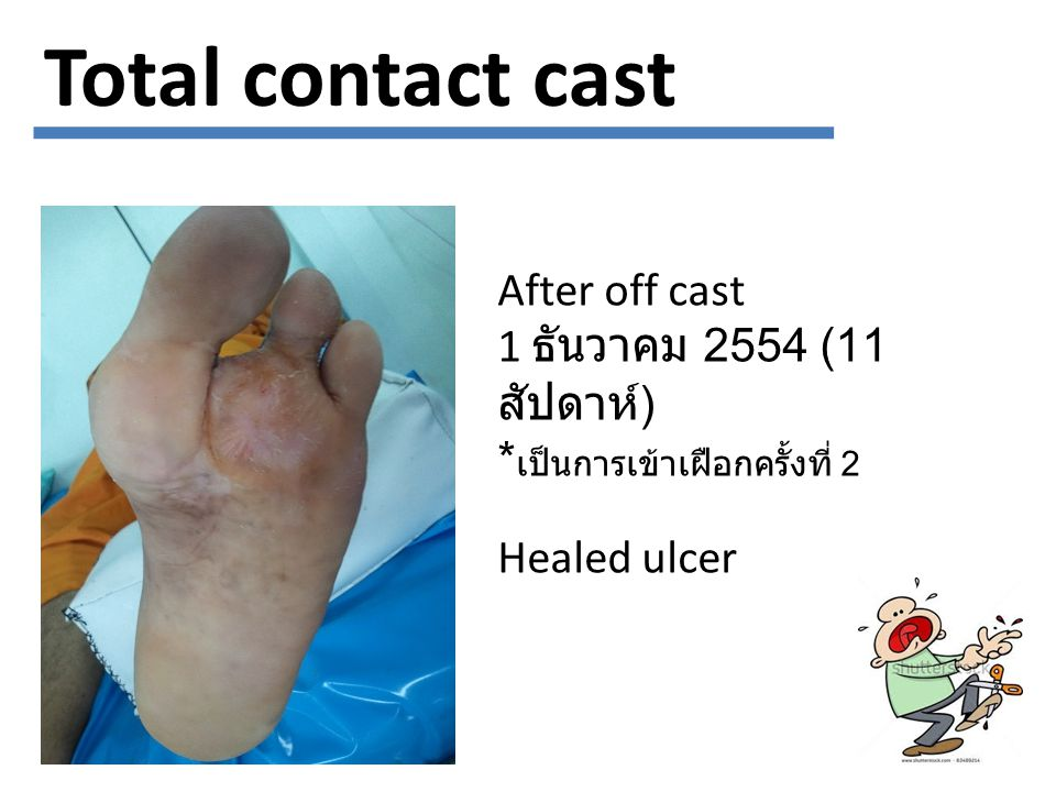 Total contact cast After off cast 1 ธันวาคม 2554 (11 สัปดาห์)