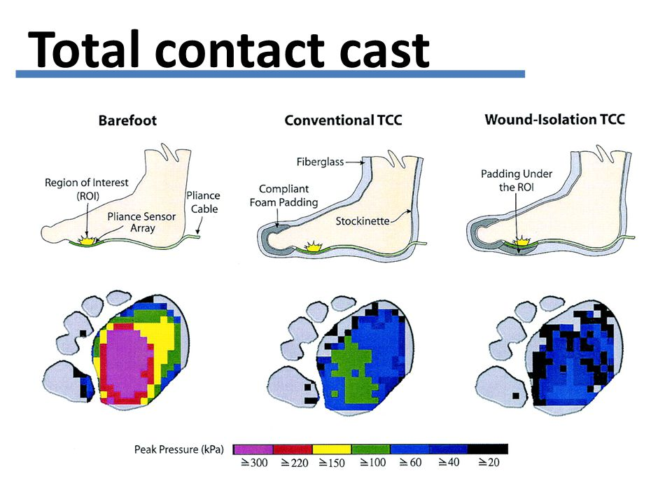 Total contact cast