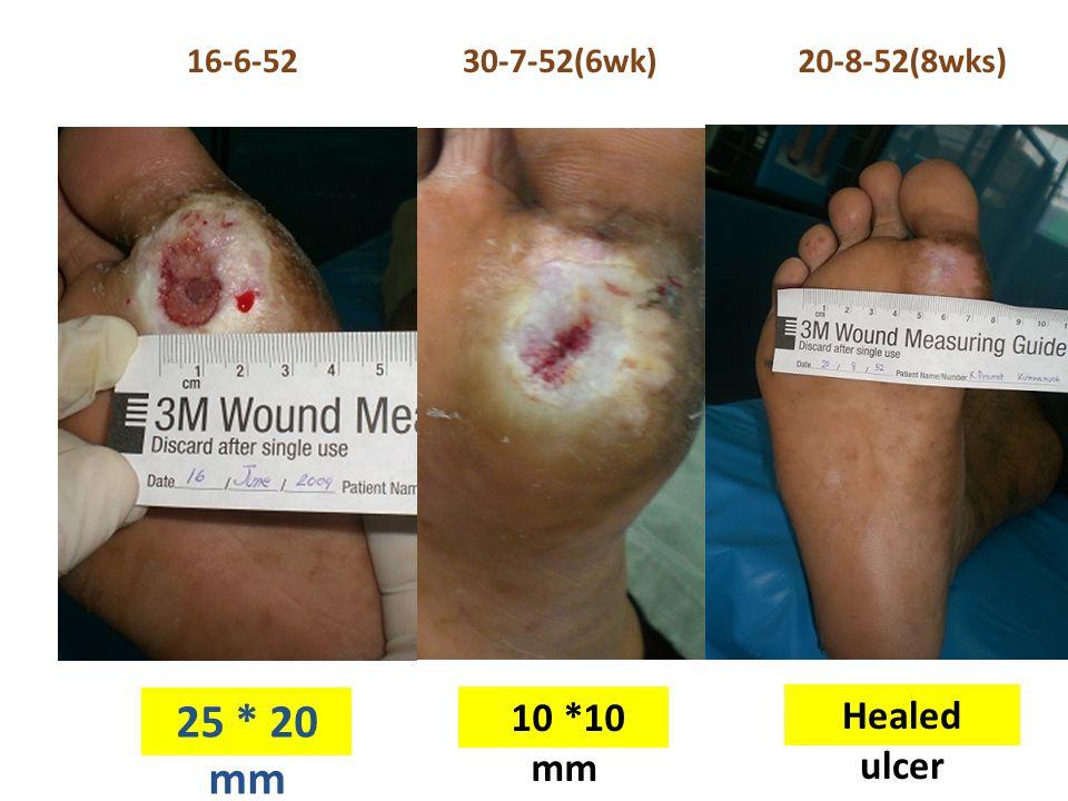 16-6-52 30-7-52(6wk) 20-8-52(8wks) 25 * 20 mm 10 *10 mm Healed ulcer