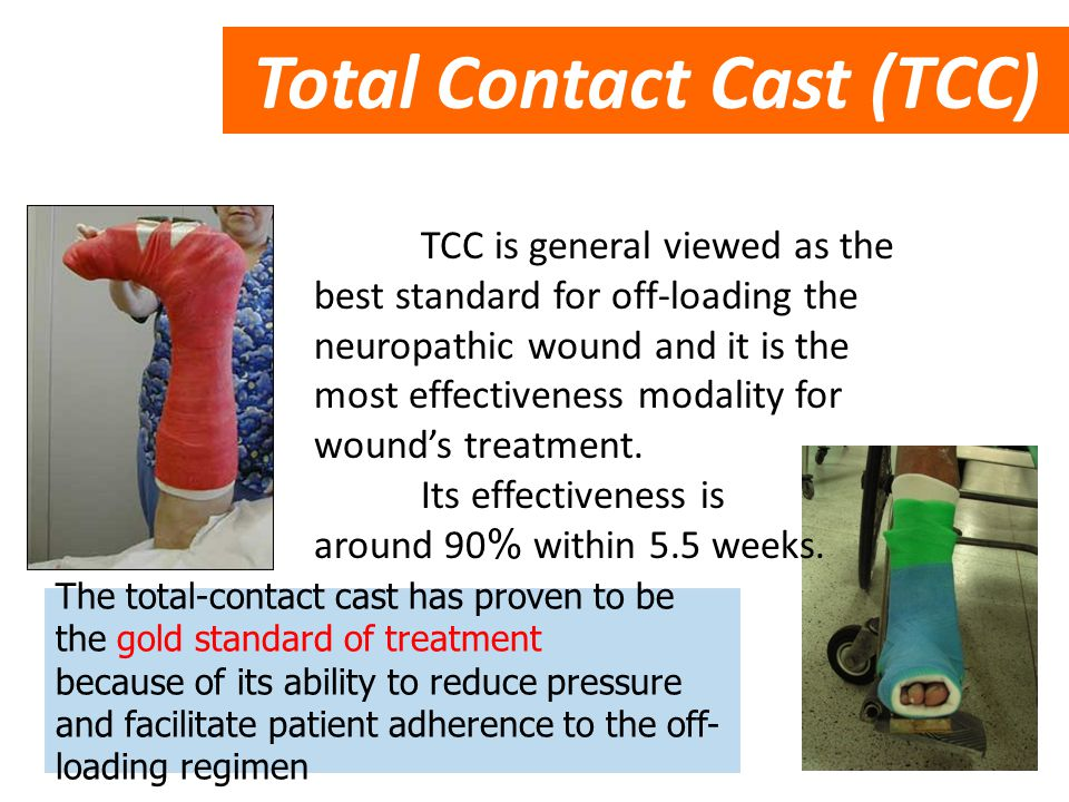 Total Contact Cast (TCC)
