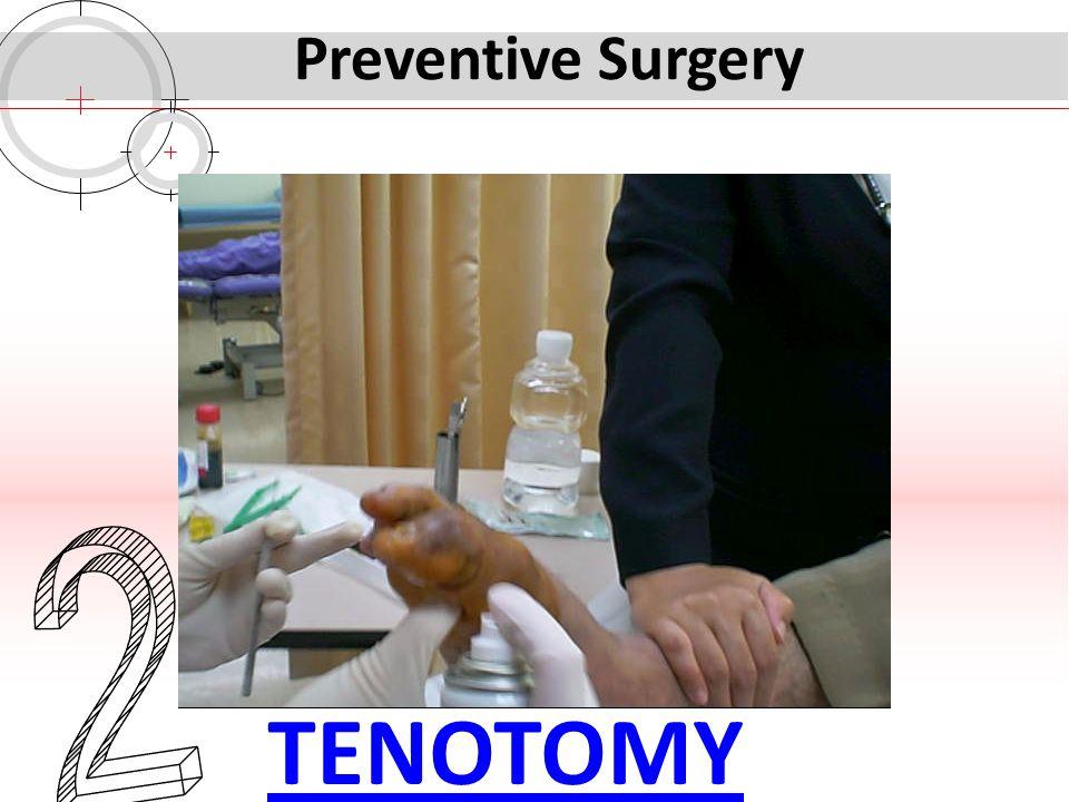 Preventive Surgery 2 TENOTOMY