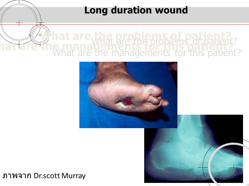 Long duration wound What are the problems of patient What are the managements for this patient