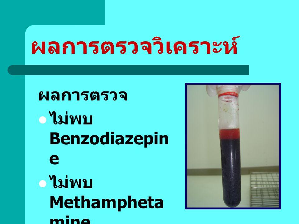 ผลการตรวจวิเคราะห์ ผลการตรวจ ไม่พบ Benzodiazepine