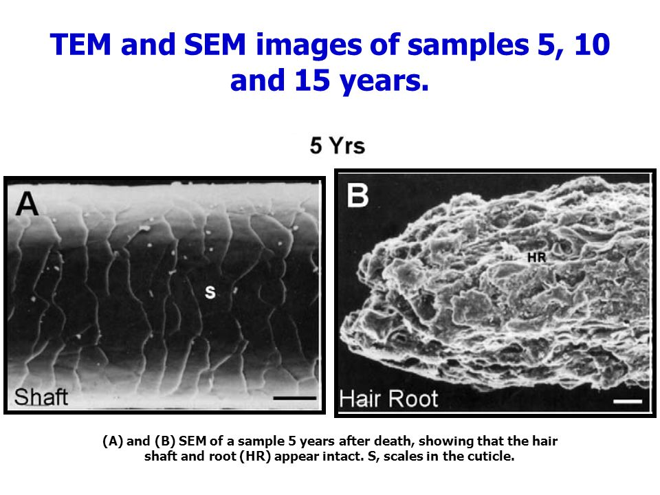 TEM and SEM images of samples 5, 10 and 15 years.