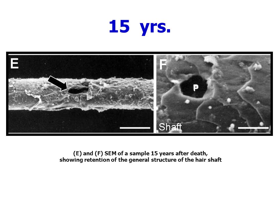 15 yrs. (E) and (F) SEM of a sample 15 years after death,