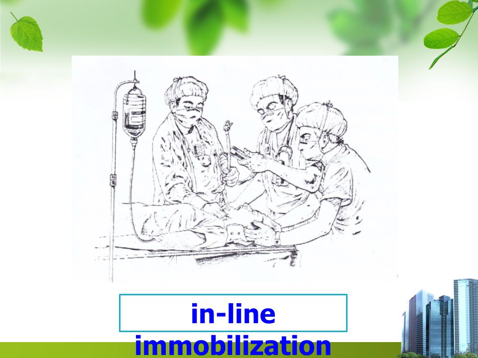 in-line immobilization