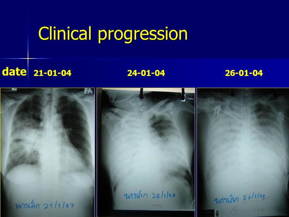Clinical progression date