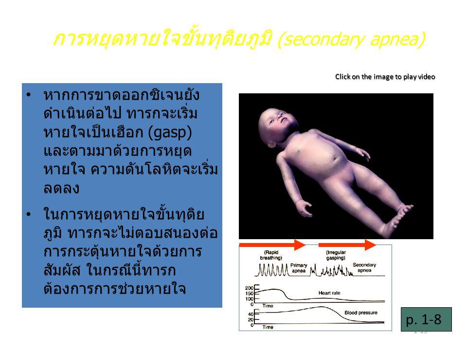 การหยุดหายใจขั้นทุติยภูมิ (secondary apnea)