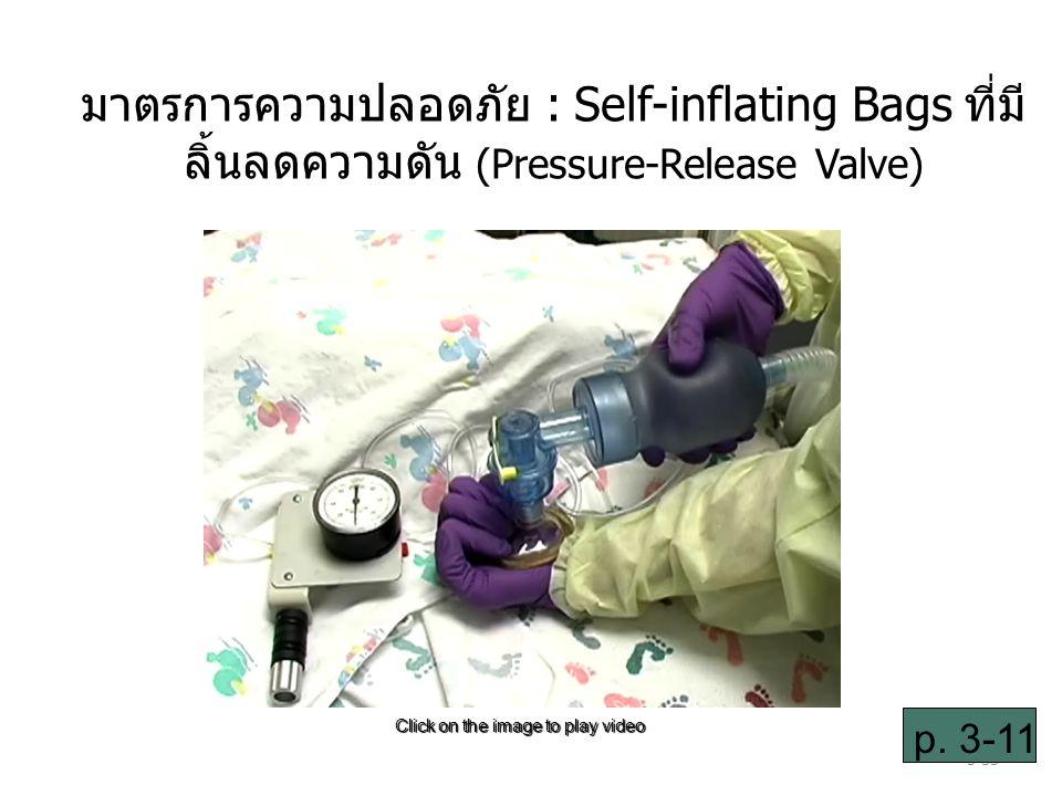 มาตรการความปลอดภัย : Self-inflating Bags ที่มีลิ้นลดความดัน (Pressure-Release Valve)