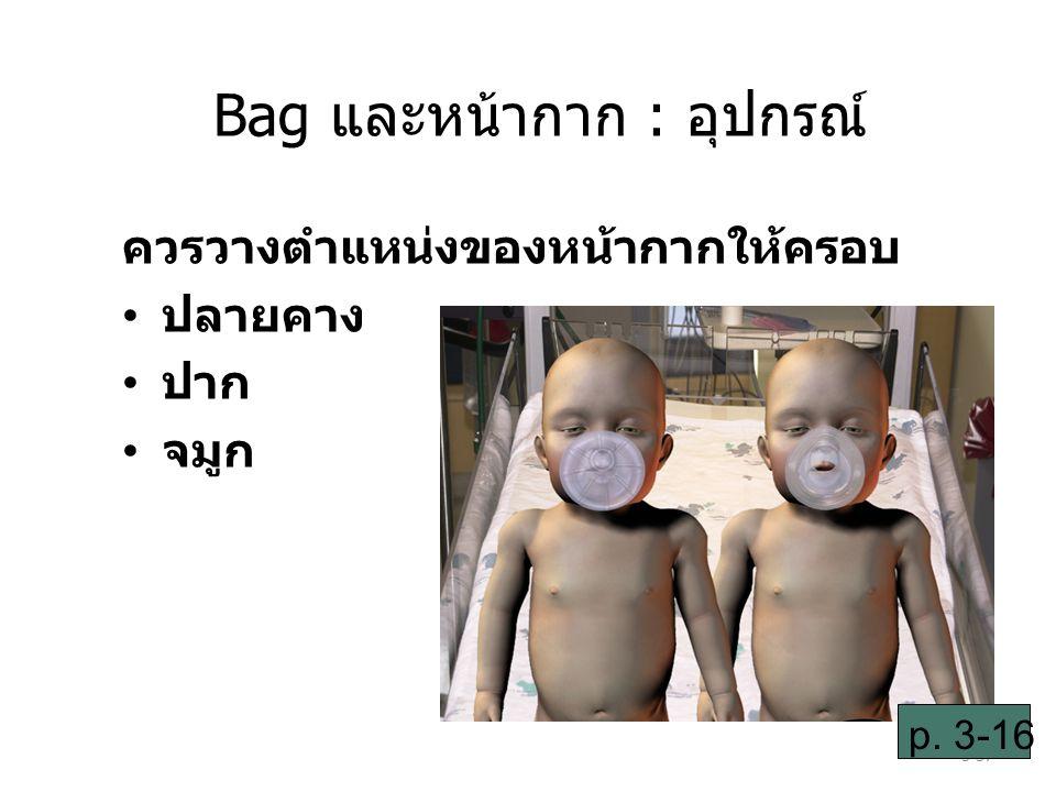 Bag และหน้ากาก : อุปกรณ์