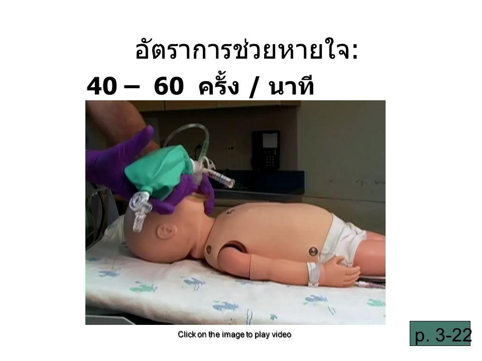 อัตราการช่วยหายใจ: 40 – 60 ครั้ง / นาที p. 3-22